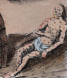 Treament_for_syphilis_17th_cent-600-2
